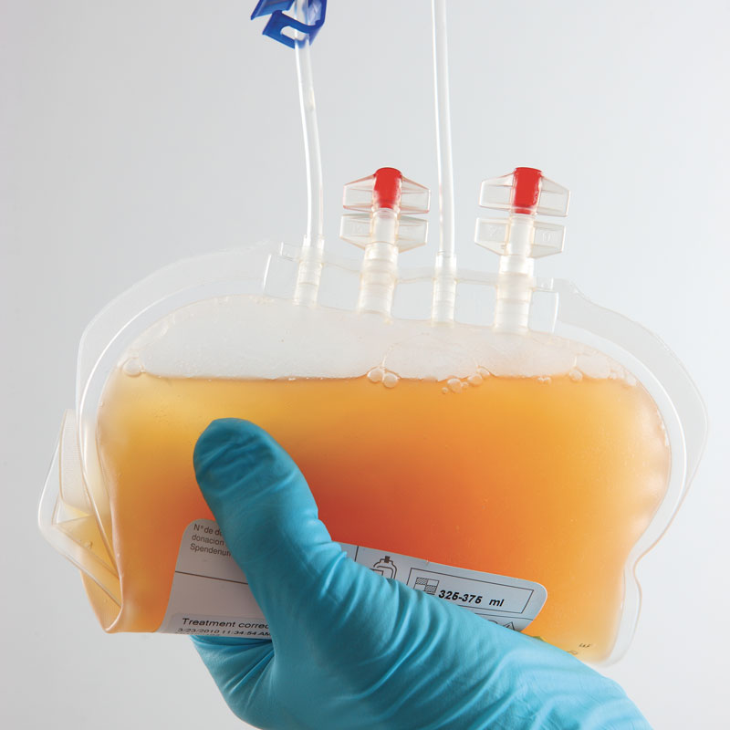Optimize platelet process