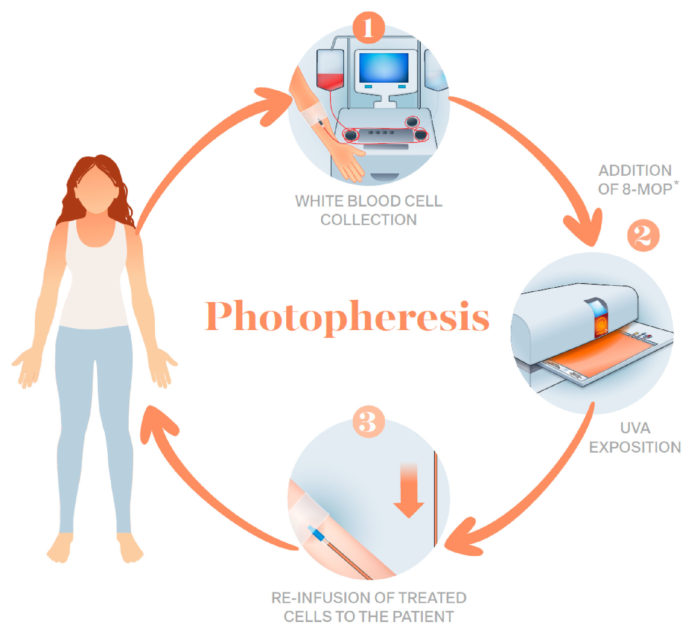 Image result for photopheresis